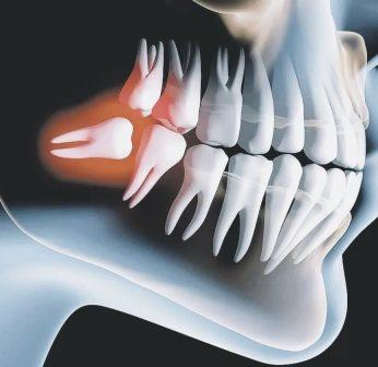 Удаление ретинированного зуба - Стоматология 21 Век, Краснодар