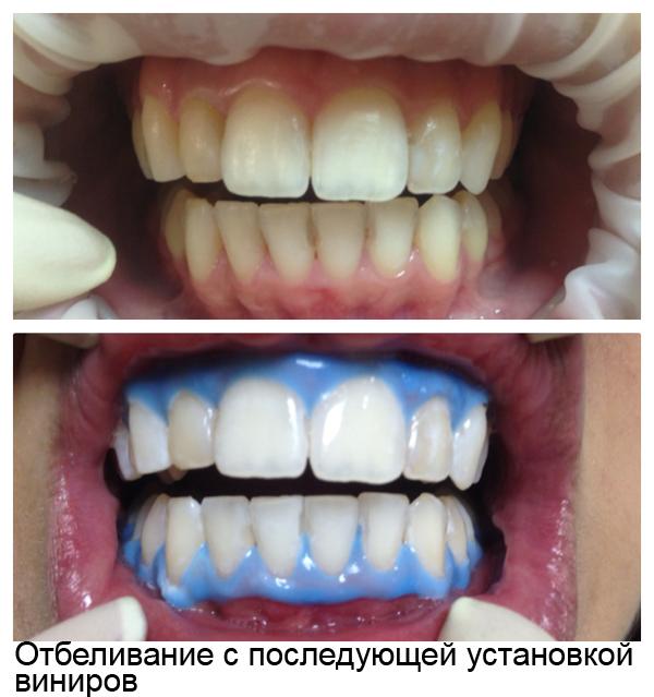 Продается ли в аптеках отбеливатель для зубов